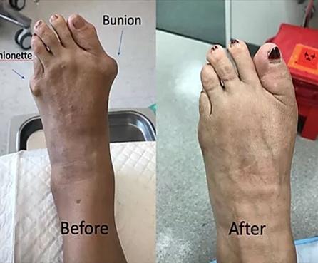 Foot-deformity