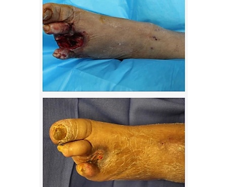 Foot-ulcer-wound-image