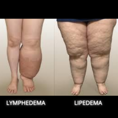 lymphedema vs lipedema